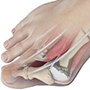 Bunion Surgery or Bunionectomy